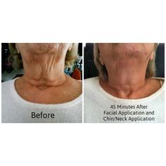 Noticing firmness of your skin going away? Maybe more wrinkles? Even just one wrap can fix that sagging skin!! Don't wait any longer to see results like these, you don't want to miss out of the confidence boost you've been looking for  Email, phone, and website in my bio! Go check it out