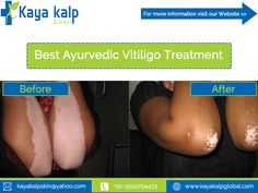 Get Best Ayurvedic treatment and Treatment in Delhi -India .To get proper leucoderma & Vitiligo treatment in Delhi Call @ 01294179393 Types Of Psoriasis, Skin Care Center, Natural Solutions, Natural Treatments, Real People, Revolution, The Cure