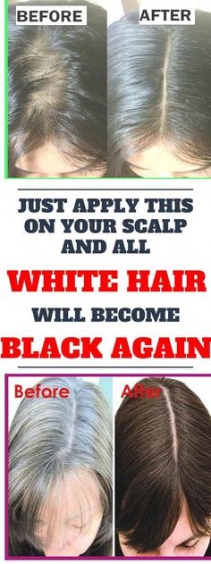 As we age, it is not uncommon for us to find white hairs on our head. As time passes, the hair gets whiter and whiter, but sometimes, gray or white hair can appear on your hair even when you're young. Simply APPLY THIS ON YOUR SCALP AND ALL WHITE HAIR WIL Grey Hair Remedies, Hair Remedies For Growth, Natural Remedies, Hair Growth, Natural Hair Care, Natural Hair Styles, Natural Beauty, What Causes Hair Loss, Excessive Hair Loss
