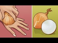 Onion has various great properties. Onion has the ability to absorb viruses, bacteria as well as flu. Onion-Healing power is a great topic for discussion. Arthritis, Home Remedies, Natural Remedies, Type 2 Diabetes Recipe, Diabetes Recipes, Fat Cutter Drink, Plank Challenge, Lower Belly Fat, Health And Fitness