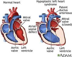 Hypoplastic Left Heart Syndrome (HLHS) | University of Maryland Medical Center