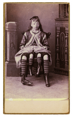 Four-legged Myrtle Corbin bore two children from her first vagina and three from her second!