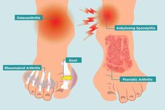 Many different kinds of arthritis can affect different parts of your feet. From medication to home remedies to surgery, here's how to treat foot arthritis. What Is Rheumatoid Arthritis, Yoga For Arthritis, Arthritis Exercises, Ankle Arthritis, Arthritis Hands, Arthritis Diet, Foot Pain Relief, Arthritis Pain Relief, Arthritis Remedies