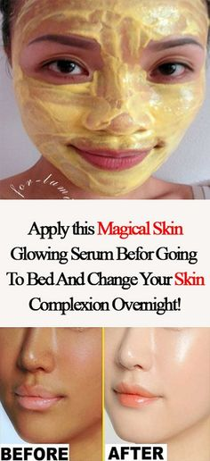 Do This For 15 Minutes Before Going To Bed, It Can Change Your Skin Complexion Overnight - Beauty Webmd Vitamin A, Vaseline Beauty Tips, Beauty Hacks For Teens, Natural Beauty Remedies, Herbal Remedies, Prevent Wrinkles, Beauty Secrets, Beauty Tricks, Beauty Products