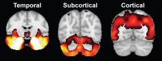 Different brain atrophy patterns may explain variability in Alzheimers disease symptoms