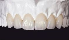 Coronas dentales Zirconio – dentallianz