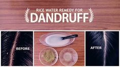 How To Get Rid Of Dandruff and Get Glossy Hair Using Rice Water