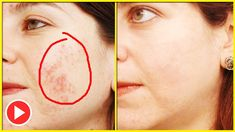 How To Treat Rosacea Naturally With Simple Home Remedies | Rosacea Treatment - Remedies One
