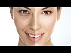 Wrinkles Home Remedies for The Skin. Wrinkles are the sign of aging. The collagen present in the skin looses with aging. Wrinkles Home Remedies Anti Aging Tips, Best Anti Aging, Anti Aging Skin Care, Creme Anti Age, Anti Aging Cream, Wrinkle Remedies, Dark Circles Under Eyes, Eye Circles, Prevent Wrinkles