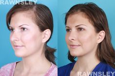 Revision Rhinoplasty Before & After Rhinoplasty Before And After, Plastic Surgery, Deep, Makeup, Beauty, Make Up, Beauty Makeup, Beauty Illustration