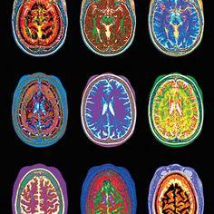 Brains are beautiful :)
