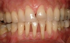 Home Remedies For Receding Gums - Natural Treatments & Cure For Receding Gums Gum Health, Teeth Health, Dental Health, Home Remedies For Skin, Natural Health Remedies, Natural Cures, Health And Beauty Tips, Health Tips, Receding Gums