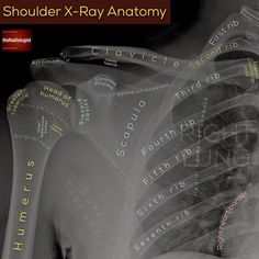 Swipe left and read on for a strategy on assessing an AP shoulder X-Ray    AP SHOULDER X-RAY 👨🏽💻This is a common emergency department… Medical Coding, Medical Technology, Medical Science, Technology News, Technology Articles, Medical School, Shoulder Anatomy, Radiology Student, Radiology Imaging