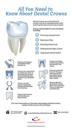 Everything You Need To Know About Your Dental Crowns www. The post Everything You Need To Know About Your Dental Crowns www. appeared first on Bobby Jivnani DDS . Dental Assistant Study, Dental Hygiene Student, Dental Surgeon, Dental Procedures, Dental Hygienist, Dental Implants, Oral Hygiene, Dental Life, Dental Health