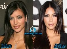 Before photoshop and after kim kardashian