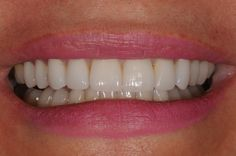 Occasionally people need to disguise their particular smile along with teeth given that they possess badly designed as well as stained teeth. In many cases the actual brown or redish colors maybe continuing that can't be eradicated through the help of teeth bleaching strategies then dental crowns are quite competent.