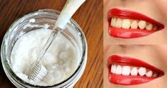 Forget the dentist! These 3 simple tips can whiten your teeth at home - Personal Care Beauty Care, Diy Beauty, Beauty Hacks, Emergency Dentist, Teeth Bleaching, Teeth Care, Skin Care, White Teeth, Health Magazine