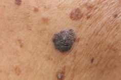 These New Skin Cancer Treatments Unleash Your Immune System – Health Essentials from Cleveland Clinic