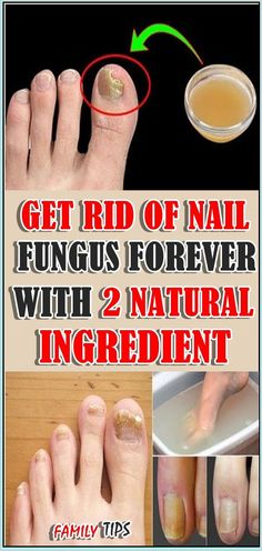 Get Rid Of Nail Fungus Forever With 2 Natural Ingredient #fungus #removefungus Stress And Health, Mental Health, Tongue Health, Health Planner, Herbal Cure, Self Care Activities, Nail Fungus, Health Facts, Health Quotes