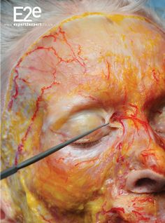 Filler complications: is there a way to prevent vascular compromise with 3D-anatomy?   The PMFA Journal