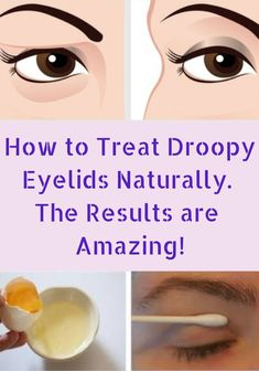 How To Treat Droopy Eyelids Naturally. The Results Are Amazing! How To Treat Droopy Eyelids Naturally. The Results Are Amazing! Beauty Tips For Face, Beauty Hacks, Beauty Care, Beauty Skin, Saggy Eyelids, Makeup For Droopy Eyelids, Snacks Diy, Loose Skin, Healthy Recipes