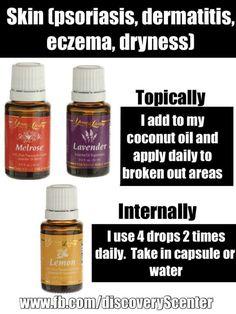 Young Living Essential Oils: Lavender, Lemon Melrose for psoriasis, dermatitis, eczema, skin dryness
