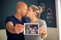 15 photos à avoir de sa grossesse |15 must-have pregnancy pics | Girlystan