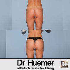 Bei dieser Patientin habe ich eine Fettabsaugung im Bereich der Oberschenkel und Flanken sowie eine Po-Vergrößerung mit Eigenfett durchgeführt Liposuction, Thigh
