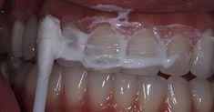 Жена стоматолога научила меня устранять зубной камень и отбеливать зубы за 4 минуты — В РИТМІ ЖИТТЯ
