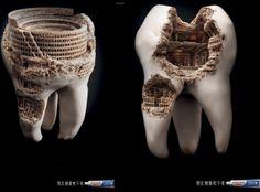 """Llamativa campaña de una pasta de dientes... """"Así se quedan si no te los cepillas"""""""