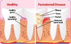 Healthy and Diseased Teeth and Gums