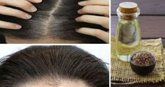 How to Reverse Grey Hair Naturally Without Coloring How to Reverse Grey Hair Naturally Without Coloring Grey Hair Treatment, Curly Hair Styles, Natural Hair Styles, Make Beauty, Colored Highlights, Stay Young, Healthy Hair, Girl Hairstyles, Health And Beauty