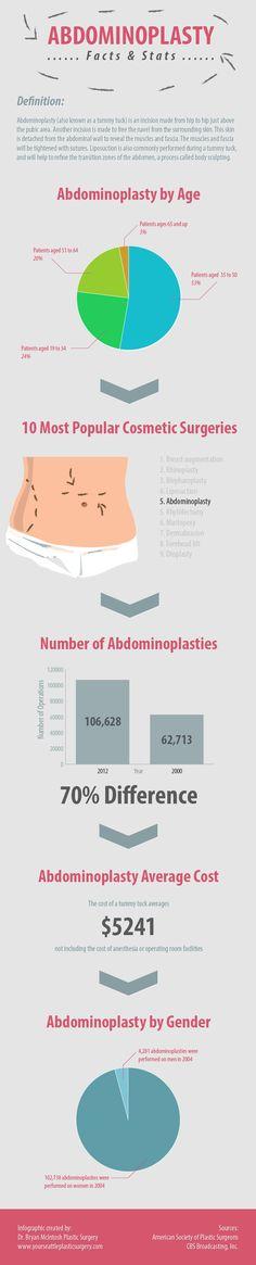 Abdomioplasty infographic