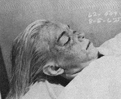Marilyn Monroe autopsy photo - The Weird Picture Archive