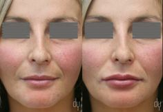 lip fillers before and after juvederm | Before and After lip augmentation with Juvederm Ultra.