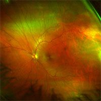 Buy retin