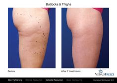 Just 7 #VenusFreeze treatments are all it took to visibly tighten the buttocks and thigh area for this patient. #SkinTightening and #CelluliteReduction is possible without surgery and without downtime. #VenusBeauty