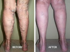 severe varicose veins. Before and After Treatment. #EVLT Advanced Vein Therapy @Advanced Vein Therapy  Boise, ID