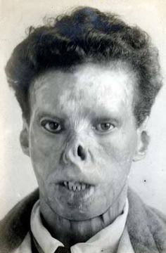 Badly burned ex soldier is photographed by medical authorities after the end of WW1. The horrific wounds of trench warfare gave a boost to surgical research into battlefield care of the disfigured and the maimed -- which was of great importance to the doctors but of little consolation to the sufferers.