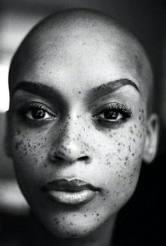 African women with freckles