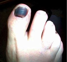 Are you facing problem regarding your toe, and want to solve this problem. Don't worry come our website and get solution. Runners Toe, Big Toe, Don't Worry, No Worries, Website, Face, Faces, Facial