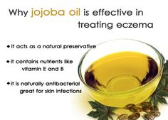 Jojoba is naturally antibacterial so it is great for skin infections and for blending with other ingredients in a formula. It is also anti-inflammatory making it very useful for treating eczema and dermatitis.