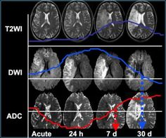 The Radiology Assistant : Brain Ischemia - Imaging in Acute Stroke Brownian Motion, Transient Ischemic Attack, Mri Brain, Basal Ganglia, Occipital Lobe, White Matter, Brain Anatomy, Psychiatry, Architecture Tattoo