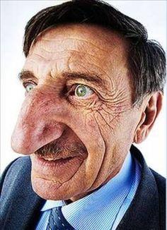 Guinness Rekorlar Kitabı'ndan Rekorları-Dünyanın `en uzun burunlu kişisi` ünvanı 2005`ten beri Artvinli Mehmet Özyürek`e ait. 61 yaşındaki Özyürek`in burnu 8.8 cm uzunluğunda ve 9 cm genişliğinde.