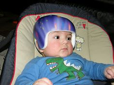 Have a look at my blog for information about our experience with Plagiocephaly treatment and information collected as we decided to treat our son with a Cranial Band from the London Orthotic Consultancy in the UK.