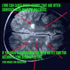 Multiple sclerosis. Lyme.  Lyme Memes For Education