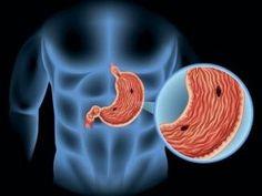 Έλκος στομάχου: Η κατάλληλη διατροφή   News