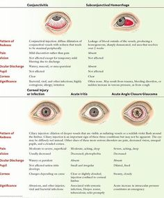 """DDX for patient presenting with """"red eyes"""""""