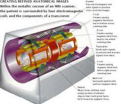 MRI Magnets May Treat Inner Ear Disorders | Vestibular Disorders Association