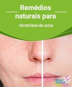 Remédios naturais para cicatrizes de acne   Todos nós sofremos o desconforto da acne em nossa juventude. Elasestão associadas a alterações hormonais e afetam a estética de nosso rosto. E é igualmente desagradável chegar à idade adulta apresentando essas marcas antiestéticas em nossa pele, as quais, na maioria das vezes, marcam-a de forma permanente,marcas essas que causam manchas após um processo inflamatório …
